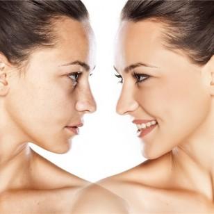 Mejora la piel de tu cara en poco tiempo con los tratamientos de belleza exprés