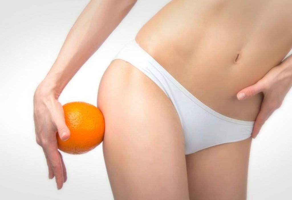 Piel de naranja Fotolia