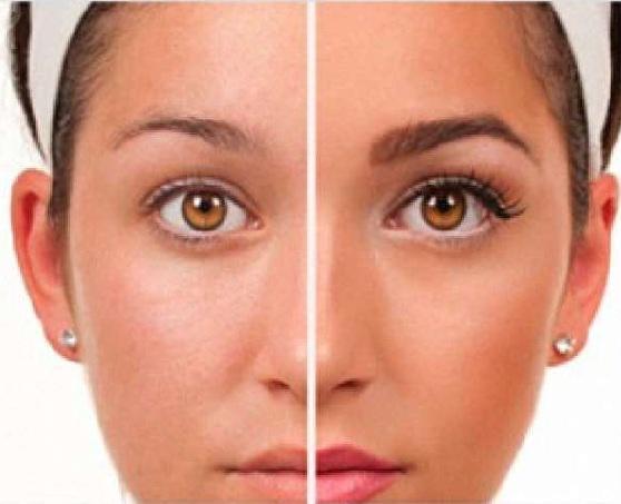 total-beauty-micropigmentacion