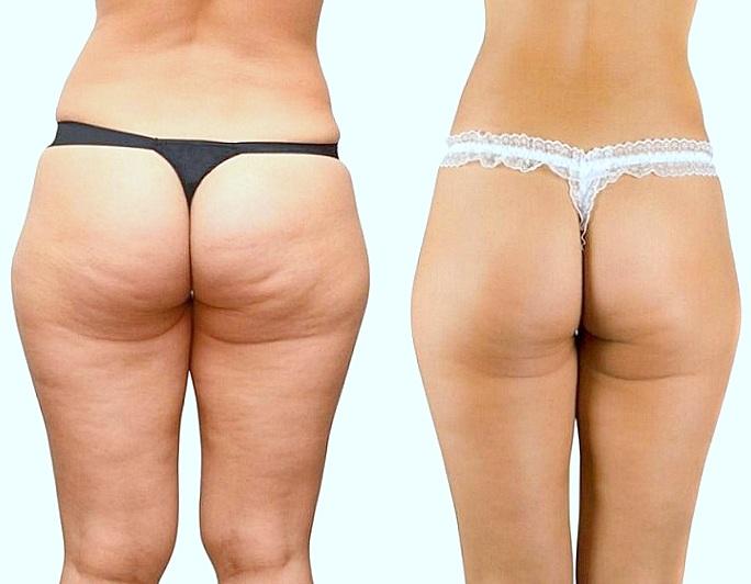 como eliminar grasa caderas