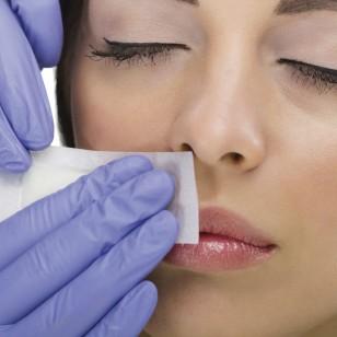 woman reciving facial epilation