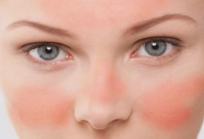 Cómo eliminar las venitas rojas de tu rostro | mujerhoy.com