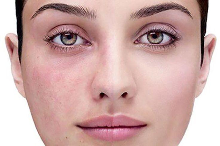 vasos sanguineos dilatados en la cara